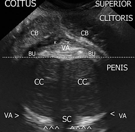 Figure 3. Coronal plane of the coitus: the clitoral complex is pushed up and crushed against the anterior vaginal wall. CB = clitoral body; K = Kobelt plexus; VA = vagina; BU = bulb; CC = corpus cavernous; SC = spongiosum corpus.
